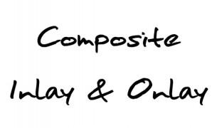 Composite Inlay & Onlay